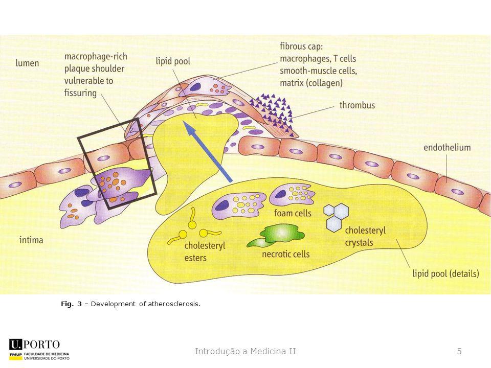 5Introdução a Medicina II Fig. 3 – Development of atherosclerosis.