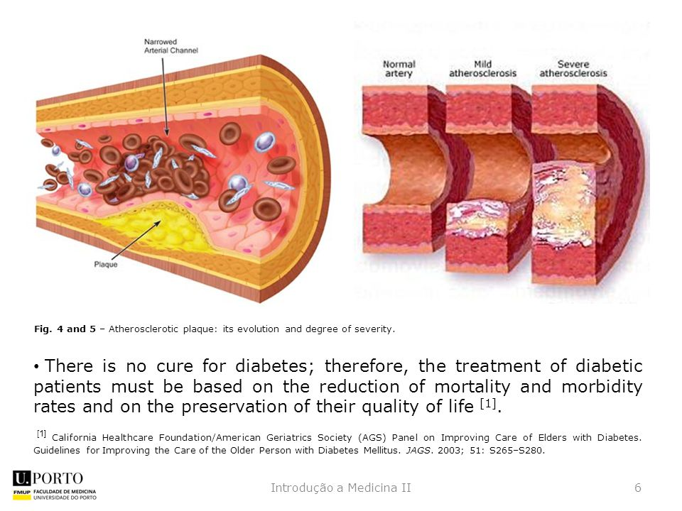 There is no cure for diabetes; therefore, the treatment of diabetic patients must be based on the reduction of mortality and morbidity rates and on the preservation of their quality of life [1].