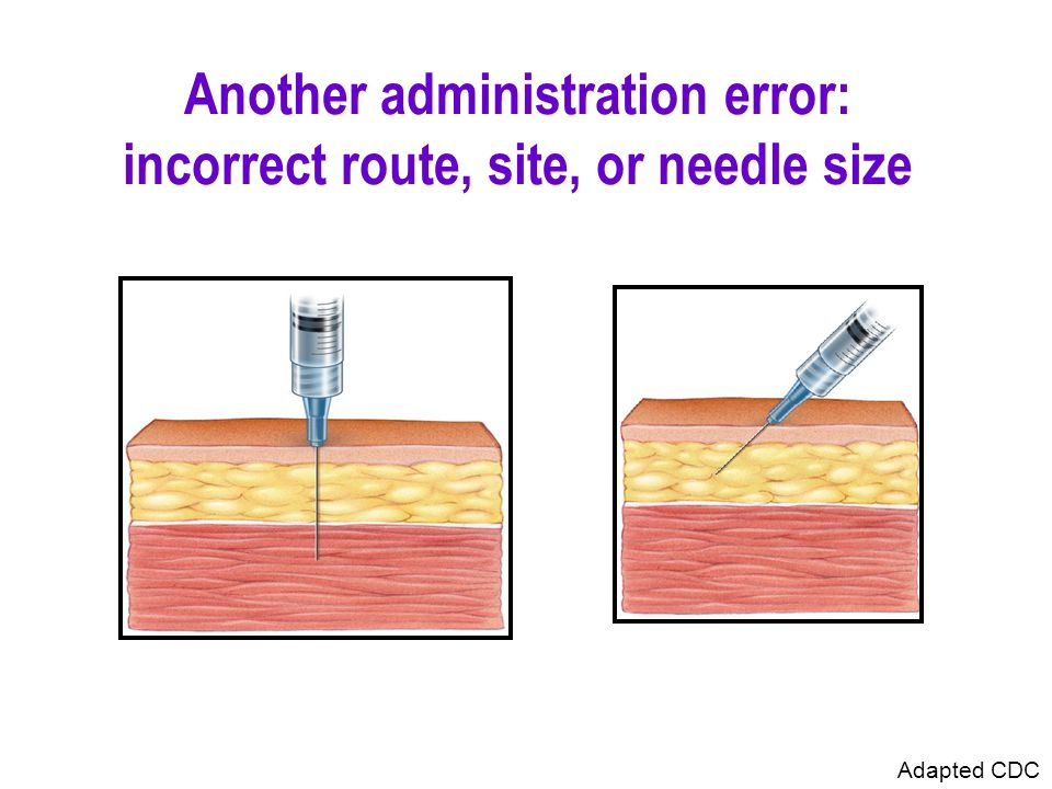 Another administration error: incorrect route, site, or needle size Adapted CDC