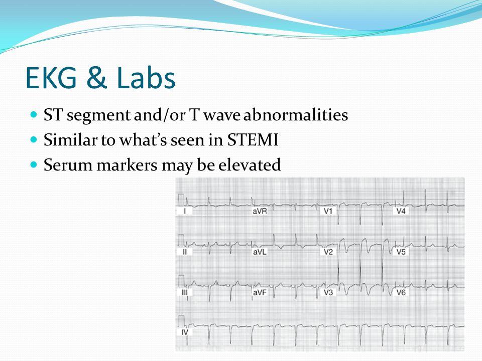 Cath & ventriculogram Catheterization: abnormal LV function, but NORMAL coronary arteries DiastoleSystole