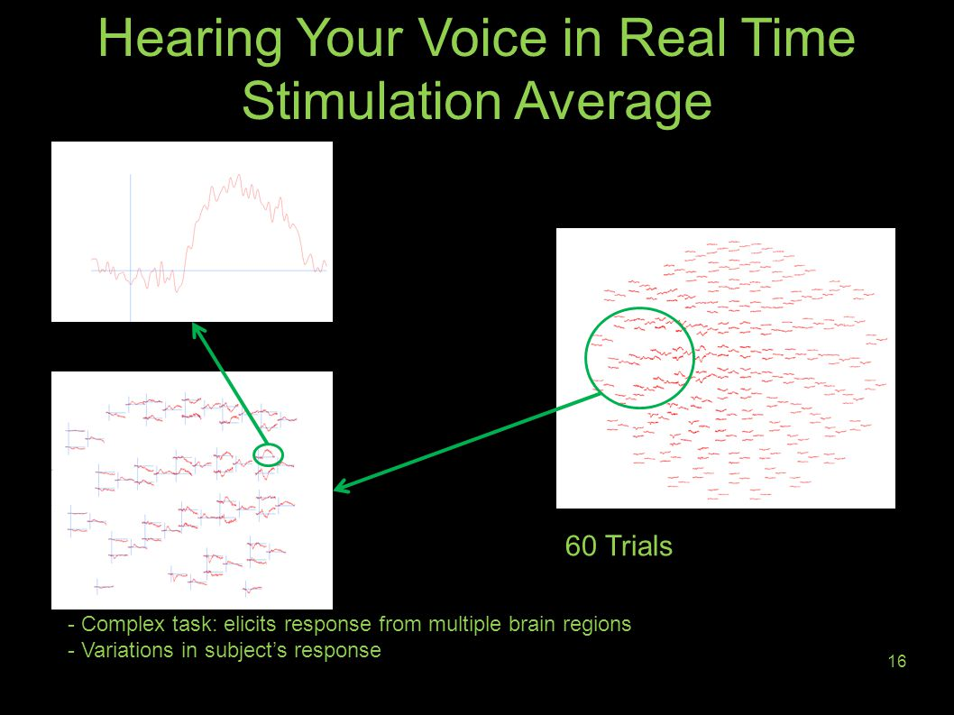 Hearing Your Voice in Real Time Stimulation Average 16 - Complex task: elicits response from multiple brain regions - Variations in subject's response 60 Trials