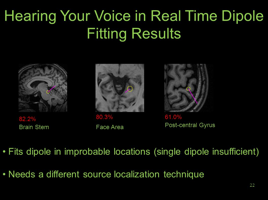 22 Hearing Your Voice in Real Time Dipole Fitting Results Fits dipole in improbable locations (single dipole insufficient) Needs a different source localization technique Brain Stem Post-central Gyrus Face Area 61.0%80.3% 82.2%