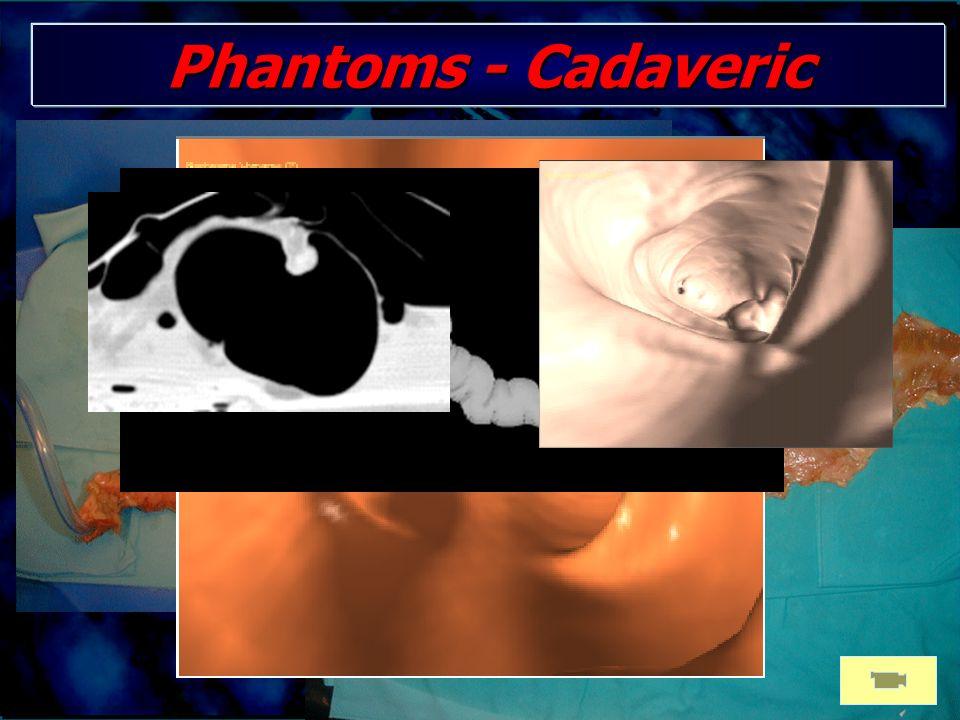 Phantoms - Cadaveric