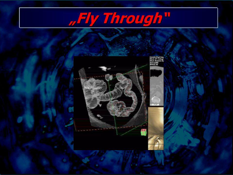 """Fly Through"""