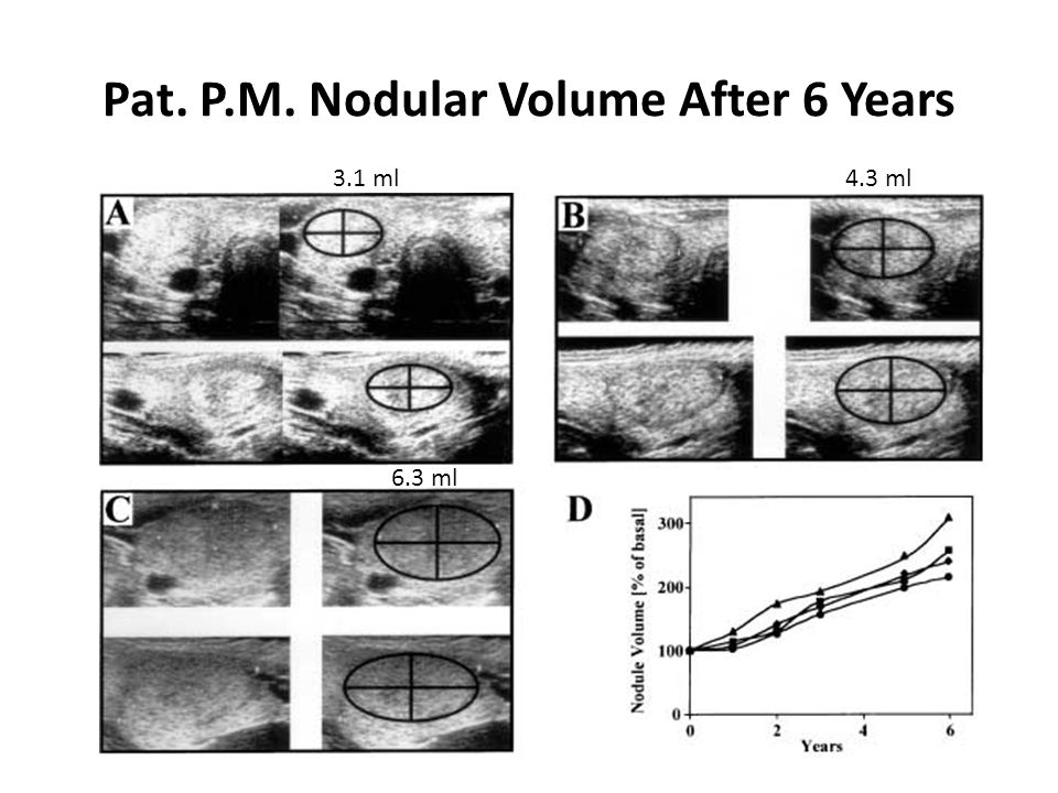 Pat. P.M. Nodular Volume After 6 Years 3.1 ml4.3 ml 6.3 ml