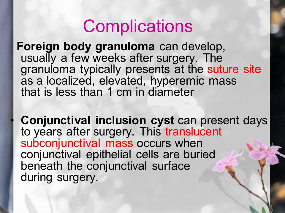 Complications Foreign body granuloma can develop, usually a few weeks after surgery.