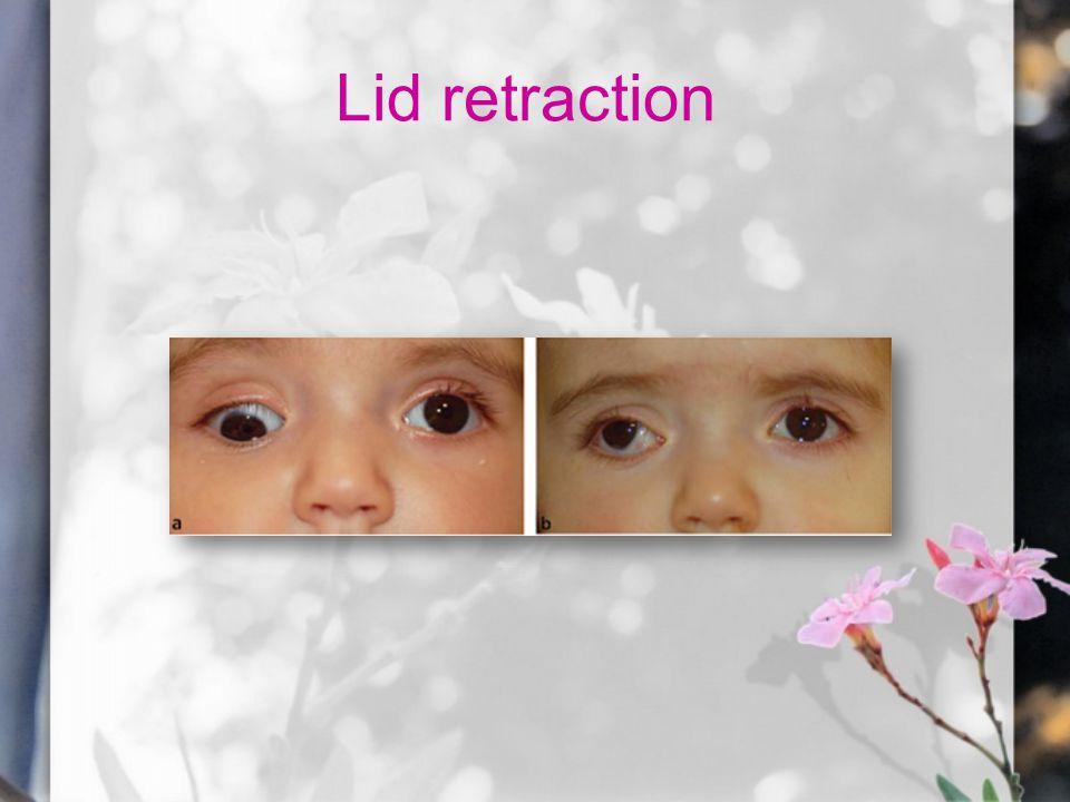 Lid retraction