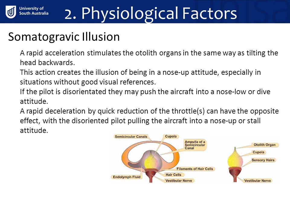 Somatogravic Illusion A rapid acceleration stimulates the otolith organs in the same way as tilting the head backwards.