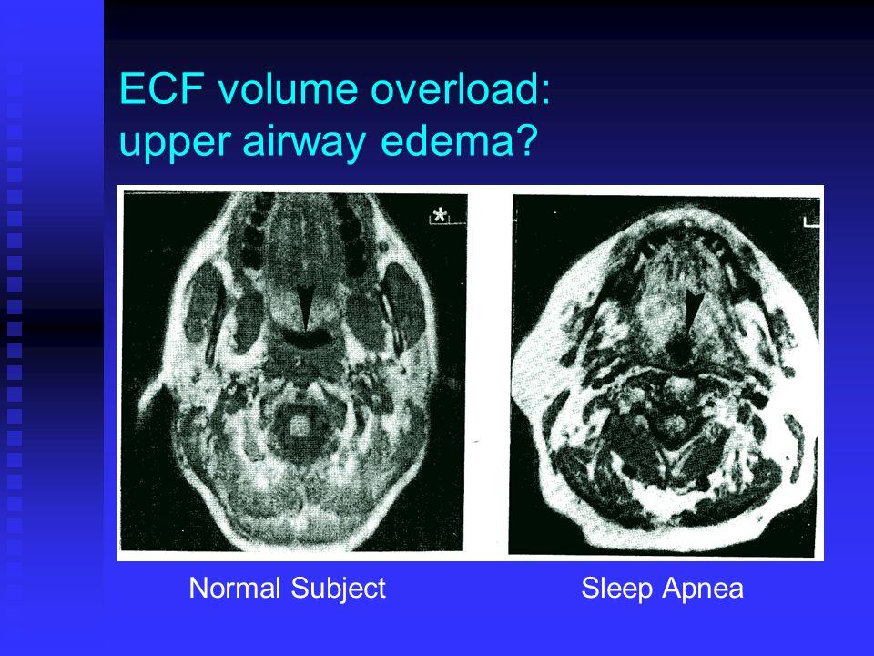 ECF volume overload: upper airway edema Normal Subject Sleep Apnea