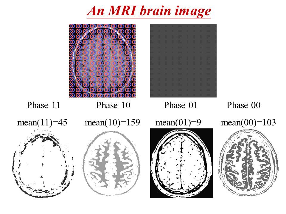 Phase 11 Phase 10 Phase 01 Phase 00 mean(11)=45 mean(10)=159 mean(01)=9 mean(00)=103 An MRI brain image