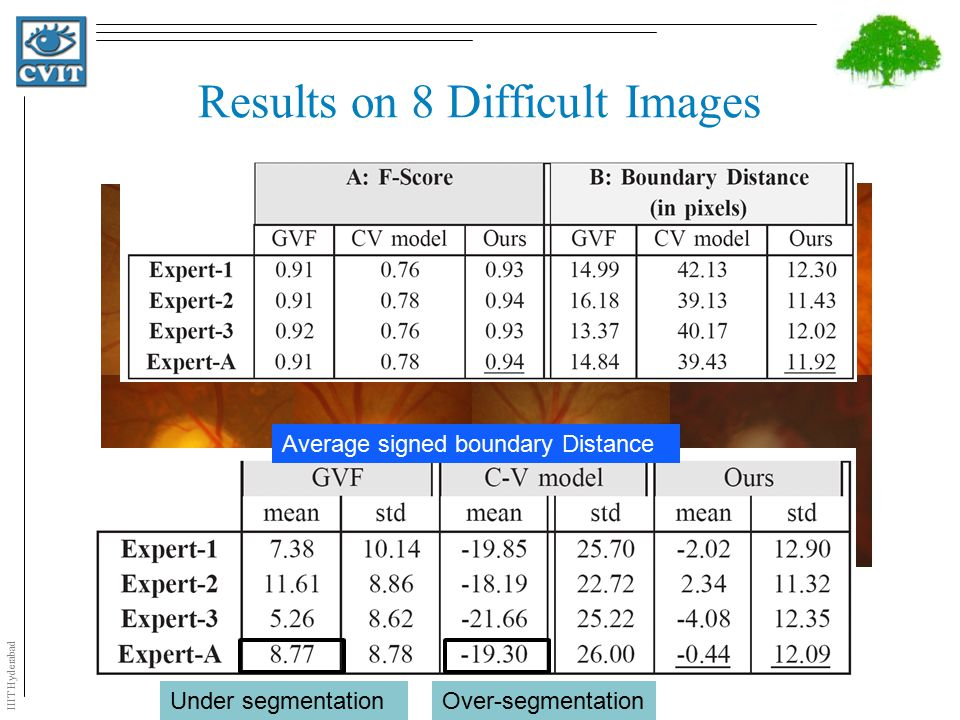 IIIT Hyderabad Results on 8 Difficult Images Average signed boundary Distance Over-segmentationUnder segmentation
