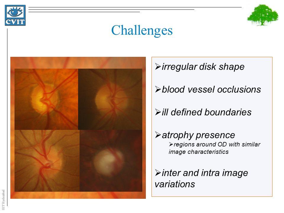 IIIT Hyderabad OD Segmentation State of the Art Template Matching Based on  Shape  Intensity Lalonde et al.