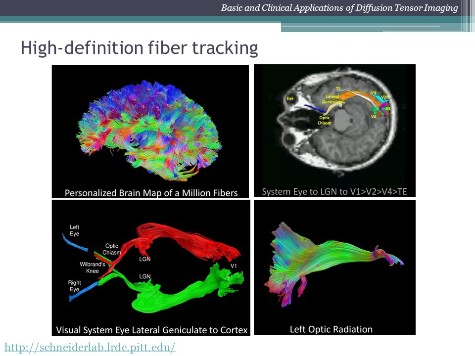 INTBP2100 Biology of Vision - Imaging of the Visual System with MRI Basic and Clinical Applications of Diffusion Tensor Imaging http://schneiderlab.lr