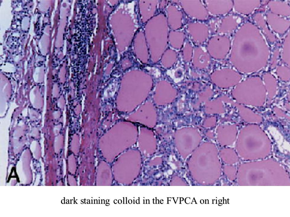 dark staining colloid in the FVPCA on right