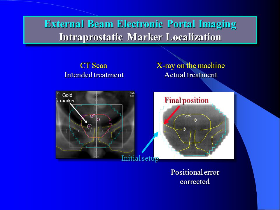 External Beam Electronic Portal Imaging Intraprostatic Marker Localization External Beam Electronic Portal Imaging Intraprostatic Marker Localization CT Scan Intended treatment X-ray on the machine Actual treatment Positional error corrected Initial setup Final position Goldmarker