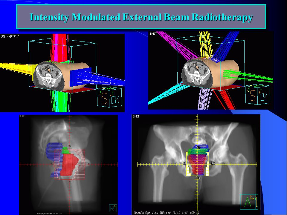 Intensity Modulated External Beam Radiotherapy