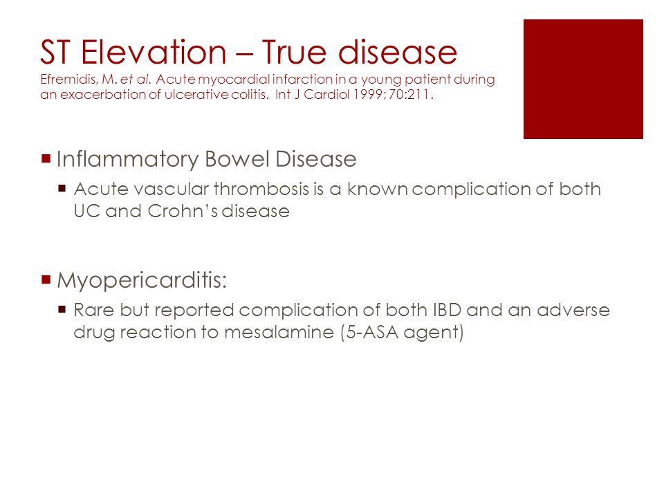 ST Elevation – True disease Efremidis, M. et al.