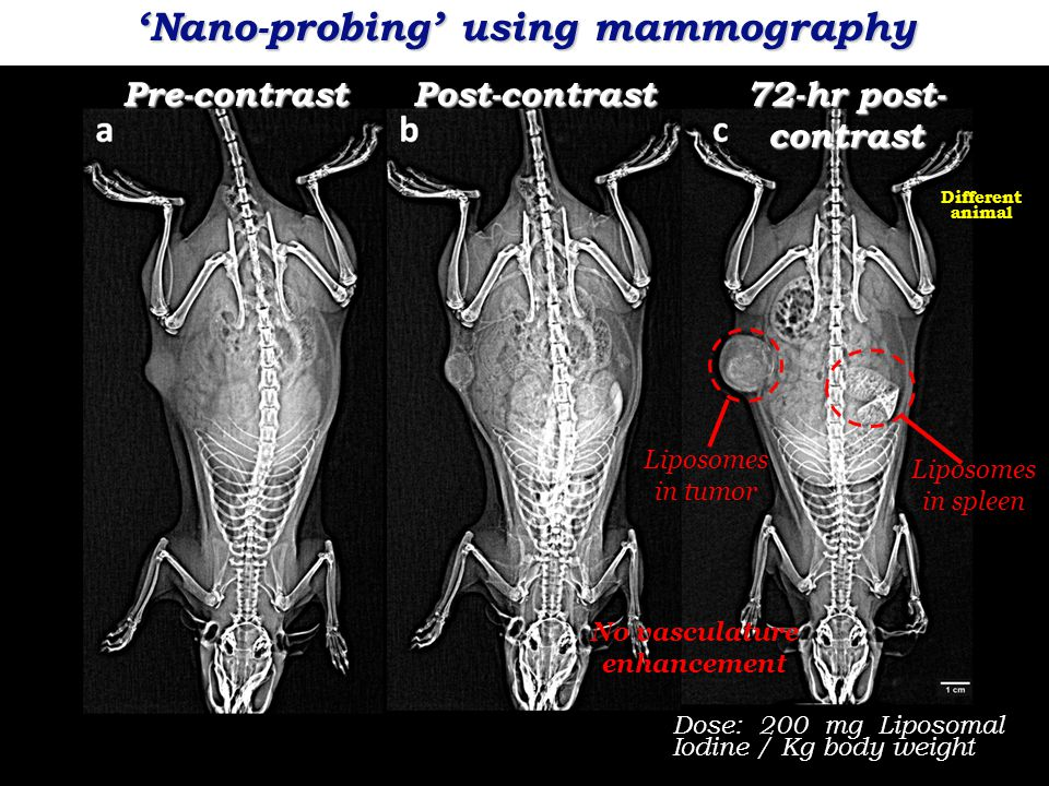Pre-contrastPost-contrast Dose: 200 mg Liposomal Iodine / Kg body weight Liposomes in tumor 72-hr post- contrast Liposomes in spleen No vasculature enhancement Different animal 'Nano-probing' using mammography