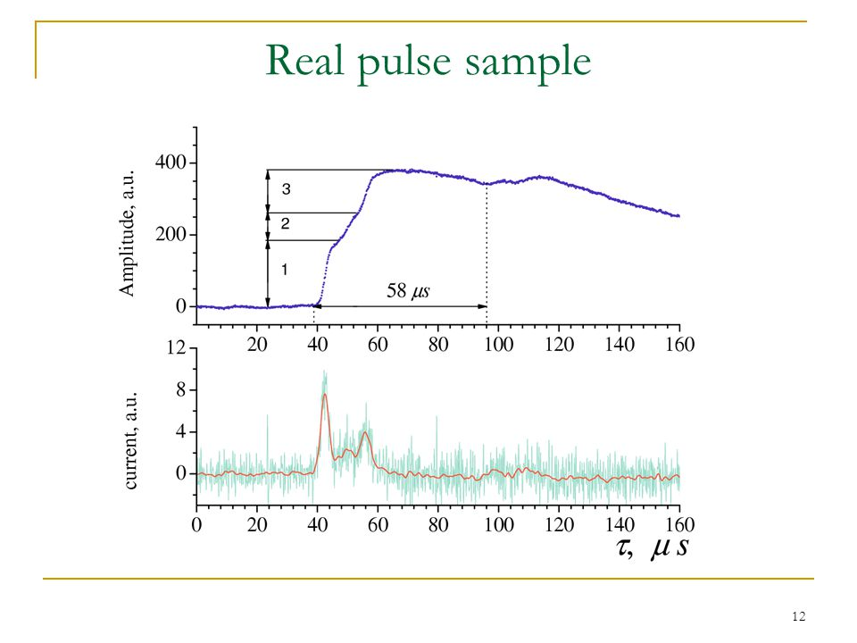 12 Real pulse sample