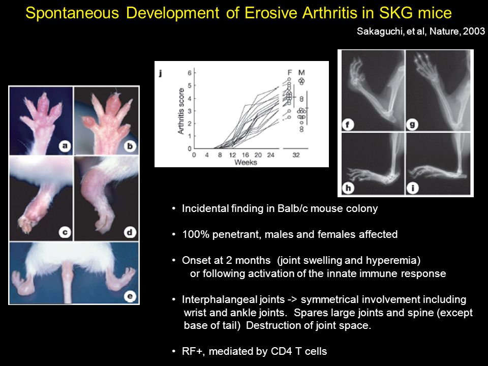 Spontaneous Development of Erosive Arthritis in SKG mice Incidental finding in Balb/c mouse colony 100% penetrant, males and females affected Onset at 2 months (joint swelling and hyperemia) or following activation of the innate immune response Interphalangeal joints -> symmetrical involvement including wrist and ankle joints.