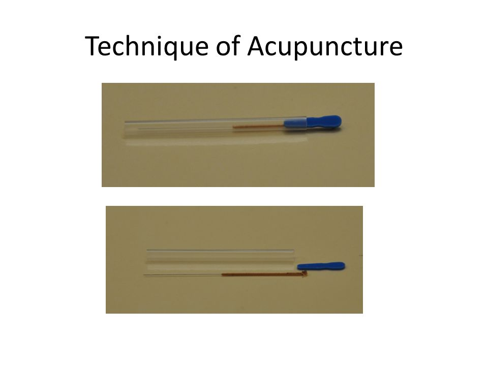 Technique of Acupuncture