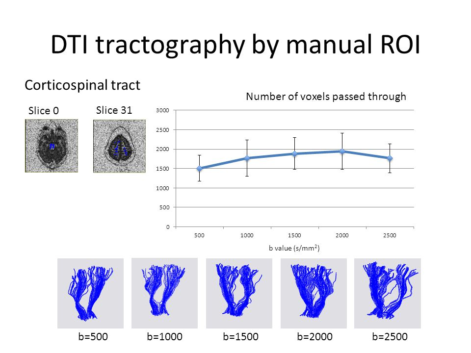 DTI tractography by manual ROI b=1000b=2500b=500b=1500b=2000 Number of voxels passed through b value (s/mm 2 ) Slice 31 Slice 0 Corticospinal tract