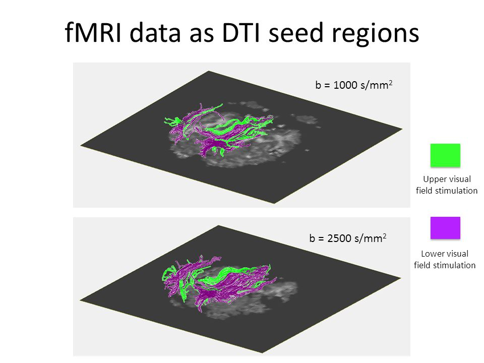 fMRI data as DTI seed regions Upper visual field stimulation Lower visual field stimulation b = 1000 s/mm 2 b = 2500 s/mm 2