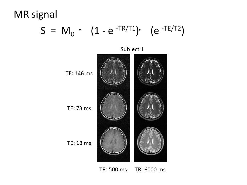 TE: 146 ms TE: 73 ms TE: 18 ms TR: 500 msTR: 6000 ms MR signal S = M 0 ・ (1 - e -TR/T1 ) ・ (e -TE/T2 ) Subject 1