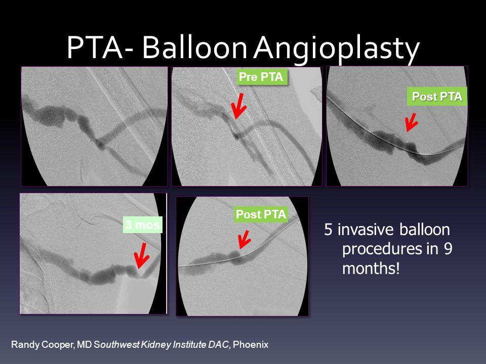 PTA- Balloon Angioplasty Pre PTA Post PTA 3 mos Post PTA Randy Cooper, MD Southwest Kidney Institute DAC, Phoenix 5 invasive balloon procedures in 9 months!