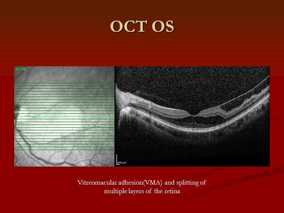 OCT OS Vitreomacular adhesion(VMA) and splitting of multiple layers of the retina
