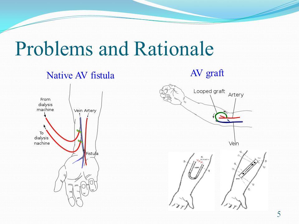 Problems and Rationale 5 Native AV fistula AV graft