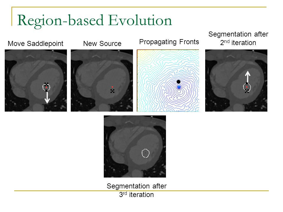 Region-based Evolution Move Saddlepoint Segmentation after 2 nd iteration Propagating Fronts New Source Segmentation after 3 rd iteration