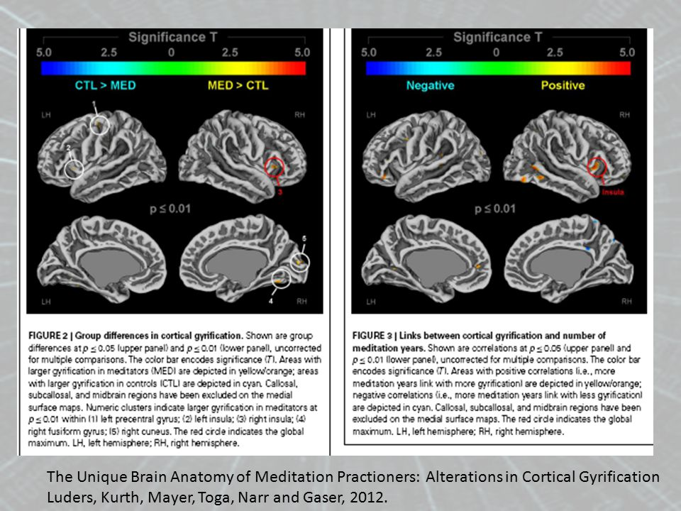 The Unique Brain Anatomy of Meditation Practioners: Alterations in Cortical Gyrification Luders, Kurth, Mayer, Toga, Narr and Gaser, 2012.