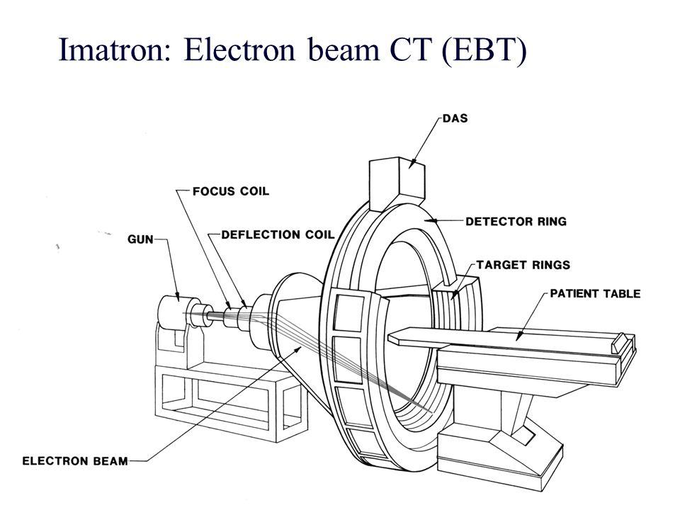 10 Imatron: Electron beam CT (EBT)