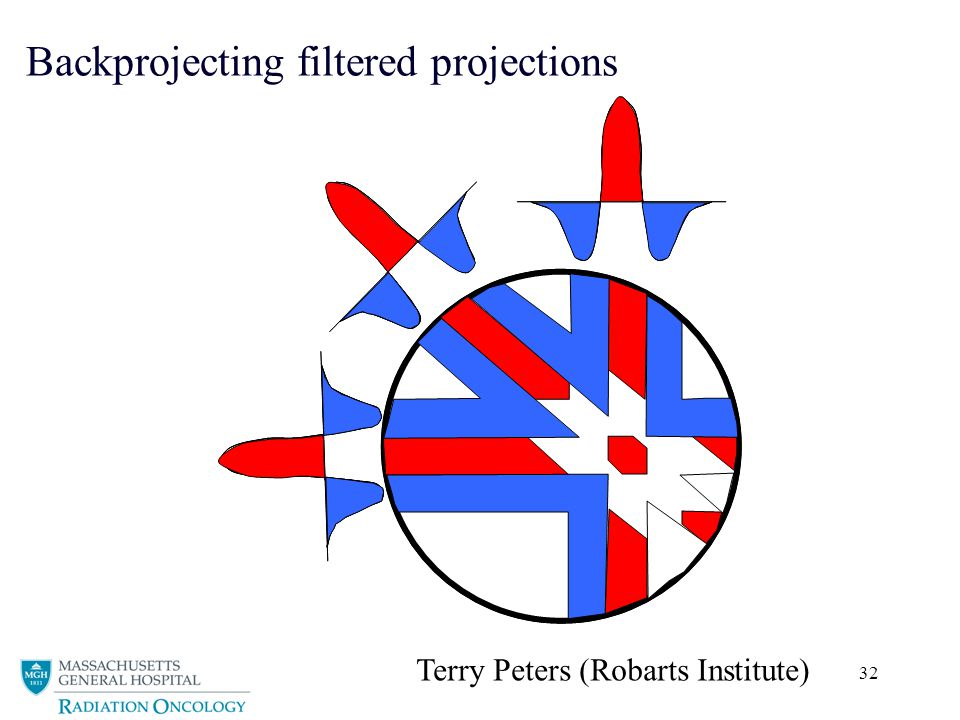 32 Backprojecting filtered projections Terry Peters (Robarts Institute)