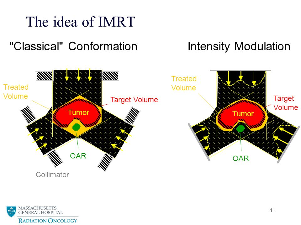 41 The idea of IMRT Treated Volume Tumor OAR Target Volume Intensity Modulation Treated Volume OAR Target Volume Collimator Classical Conformation