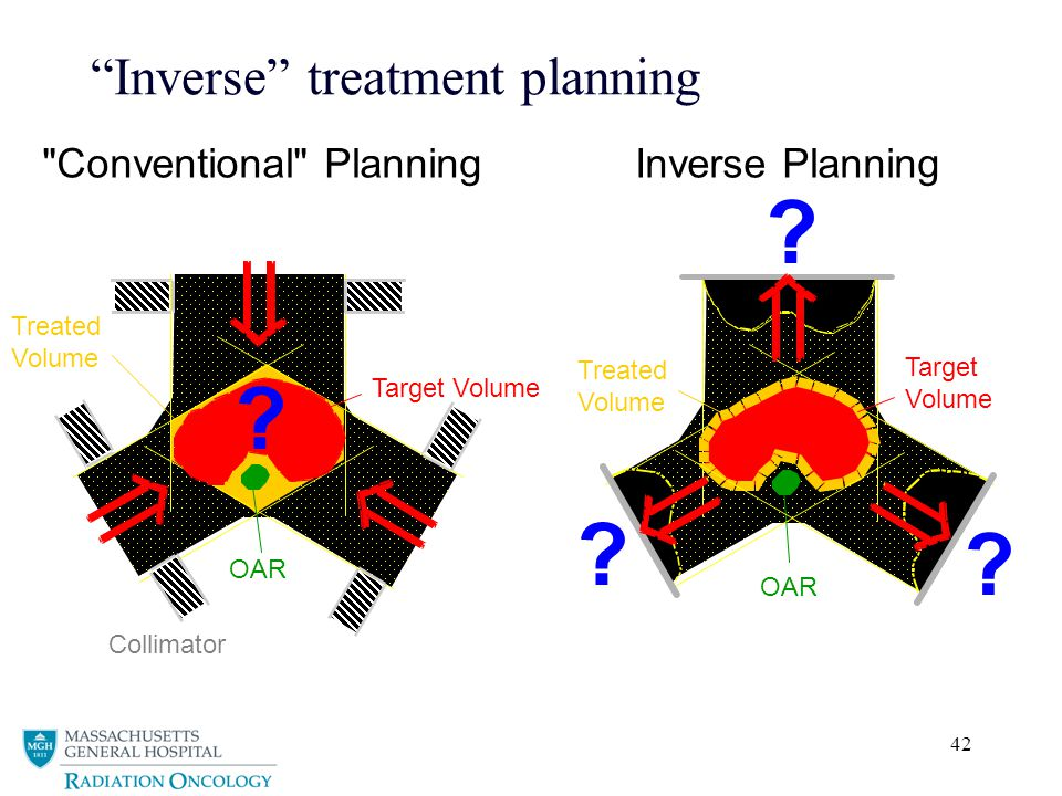 42 Inverse treatment planning Treated Volume OAR Target Volume Collimator Treated Volume OAR Target Volume Inverse Planning Conventional Planning