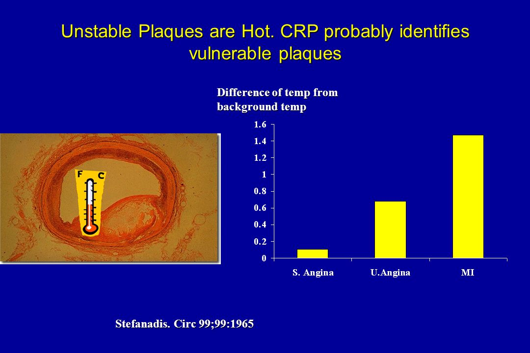 CRP Is a Risk Factor in Unstable Angina Liuzzo et al.