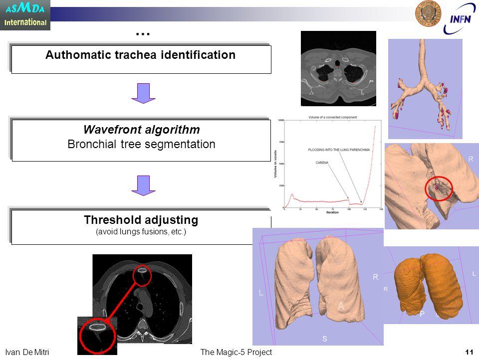 The Magic-5 Project 11 Ivan De Mitri Wavefront algorithm Bronchial tree segmentation Threshold adjusting (avoid lungs fusions, etc.) Authomatic trachea identification …