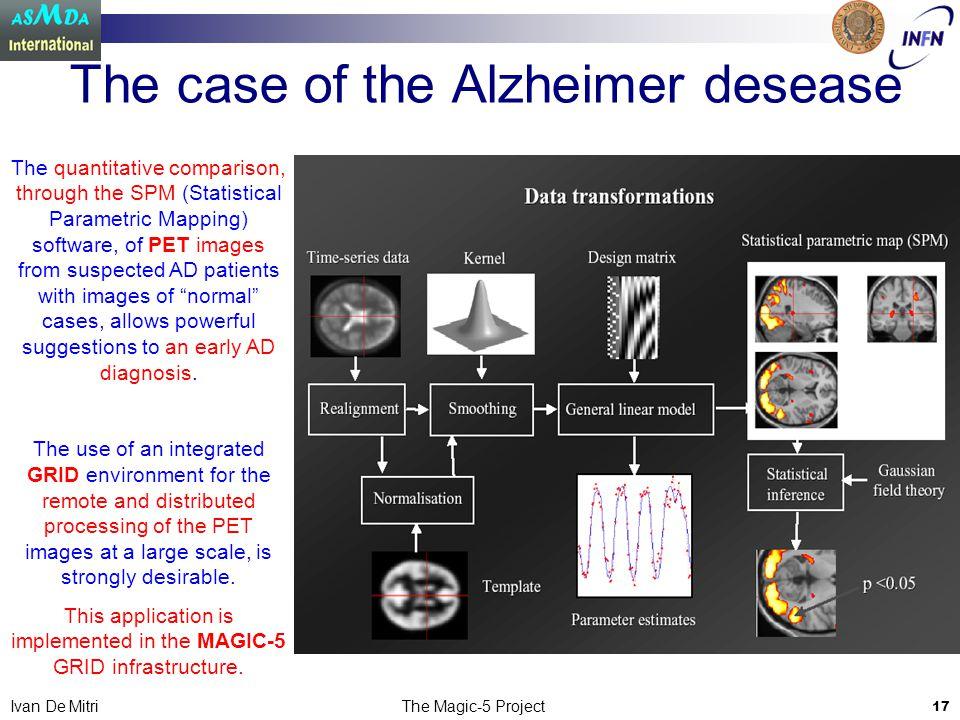 The Magic-5 Project 17 Ivan De Mitri The case of the Alzheimer desease The quantitative comparison, through the SPM (Statistical Parametric Mapping) s