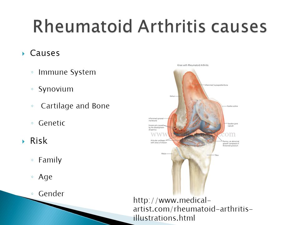  Causes ◦ Immune System ◦ Synovium ◦ Cartilage and Bone ◦ Genetic  Risk ◦ Family ◦ Age ◦ Gender http://www.medical- artist.com/rheumatoid-arthritis- illustrations.html