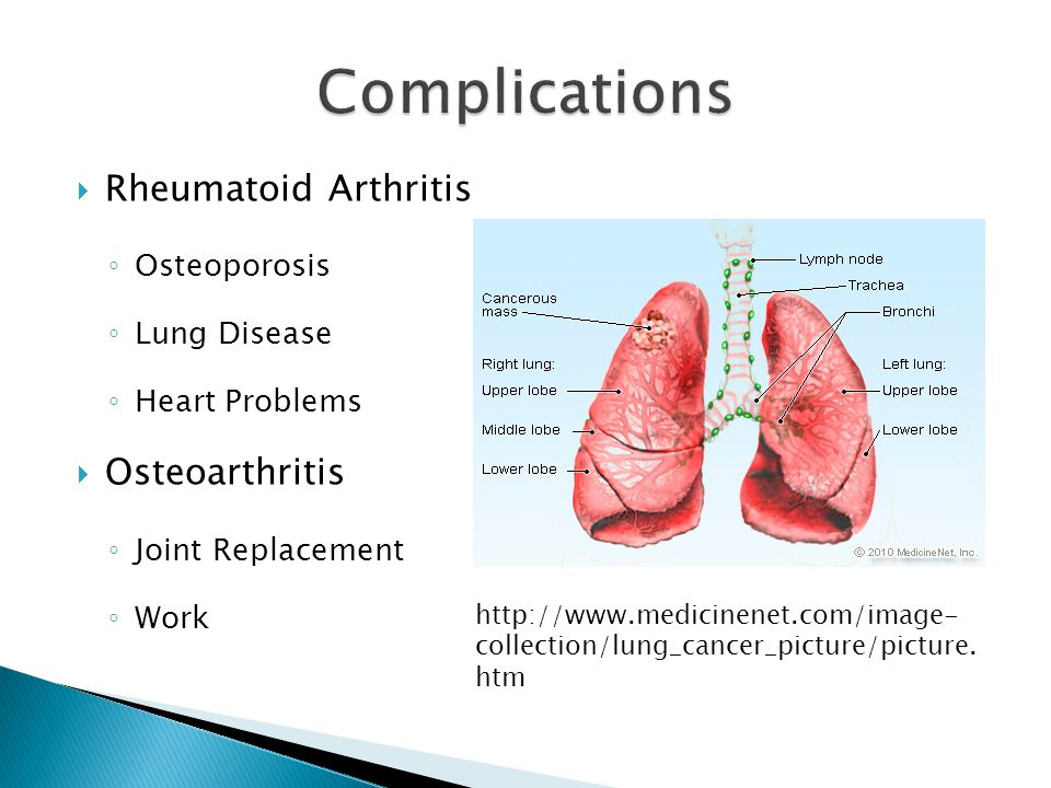  Rheumatoid Arthritis ◦ Osteoporosis ◦ Lung Disease ◦ Heart Problems  Osteoarthritis ◦ Joint Replacement ◦ Work http://www.medicinenet.com/image- collection/lung_cancer_picture/picture.