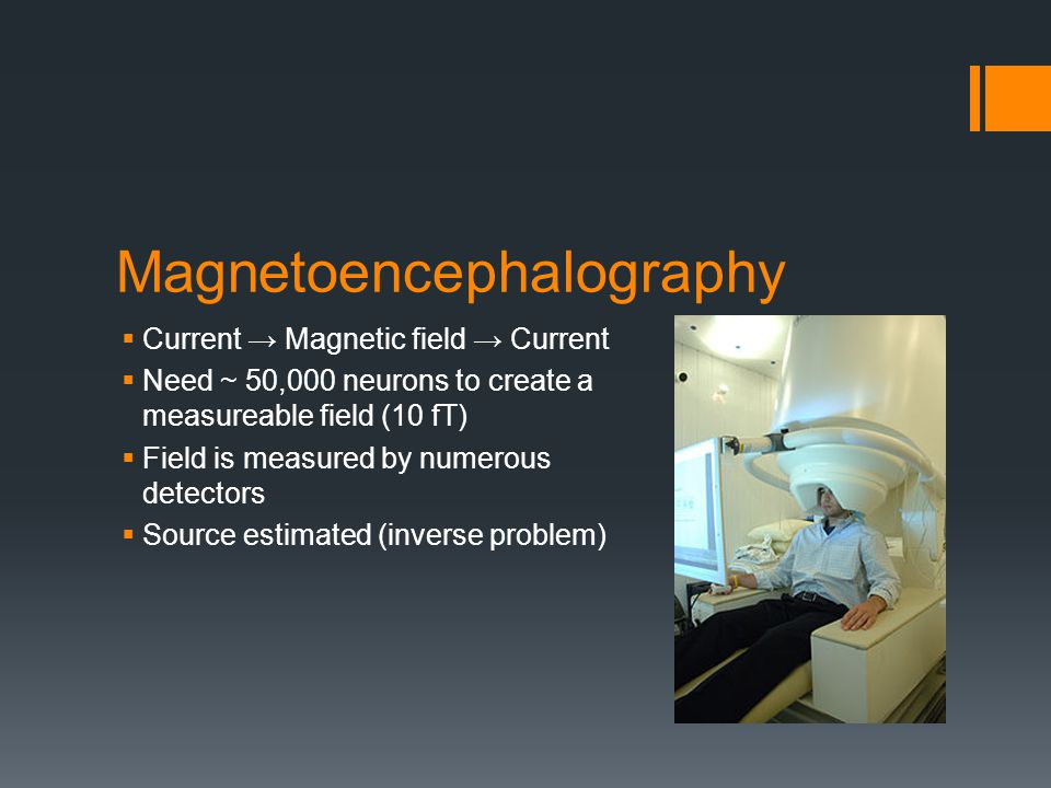 Magnetoencephalography  Current → Magnetic field → Current  Need ~ 50,000 neurons to create a measureable field (10 fT)  Field is measured by numerous detectors  Source estimated (inverse problem)
