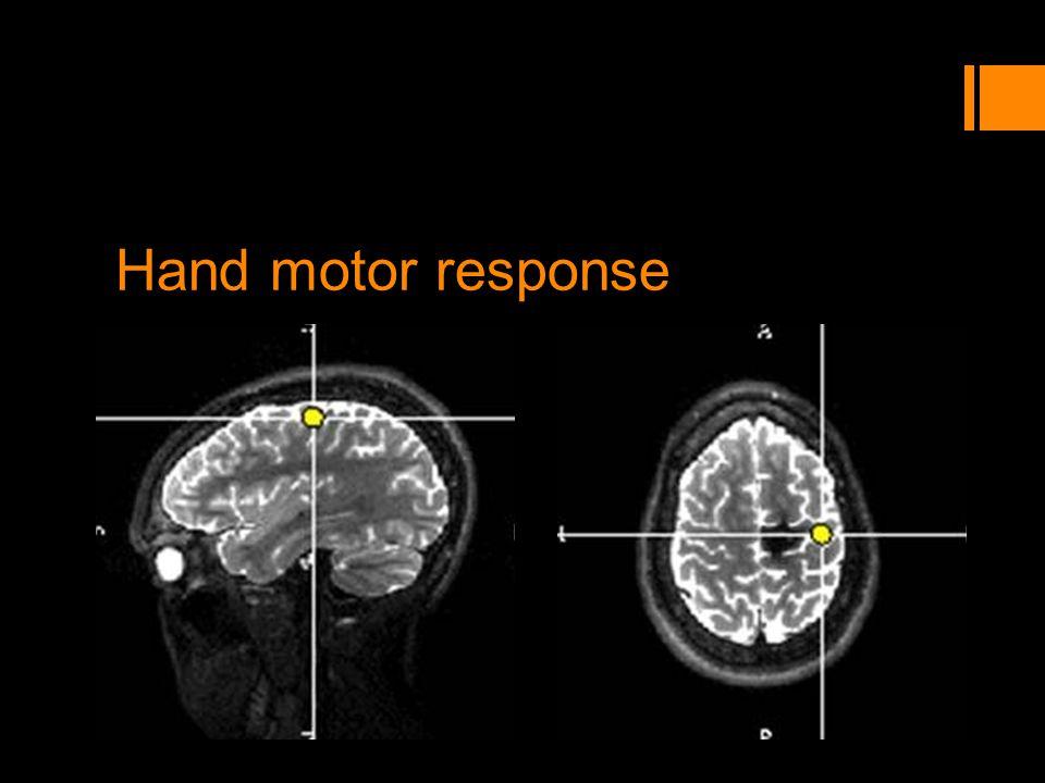 Hand motor response