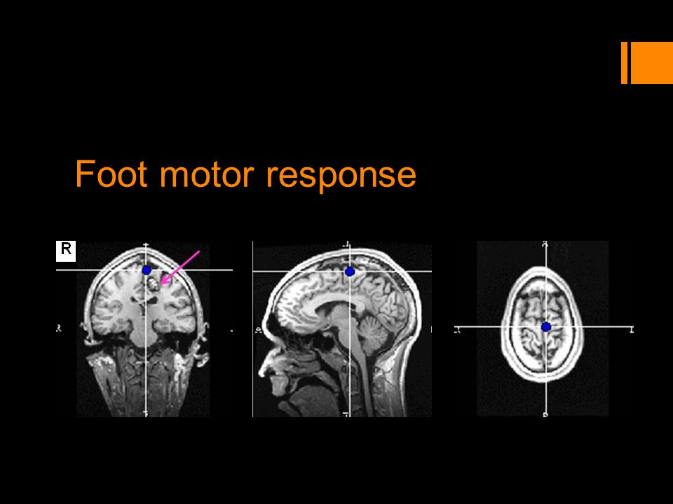 Foot motor response