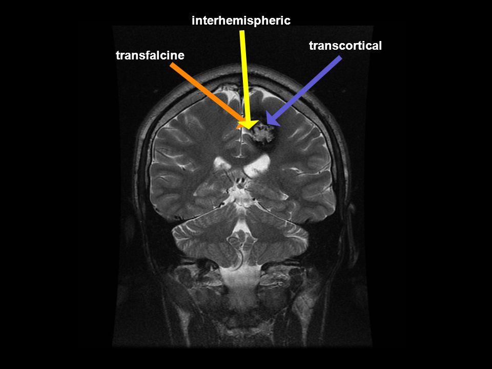 transfalcine transcortical interhemispheric