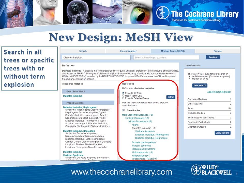 New Design: MeSH View Search in all trees or specific trees with or without term explosion