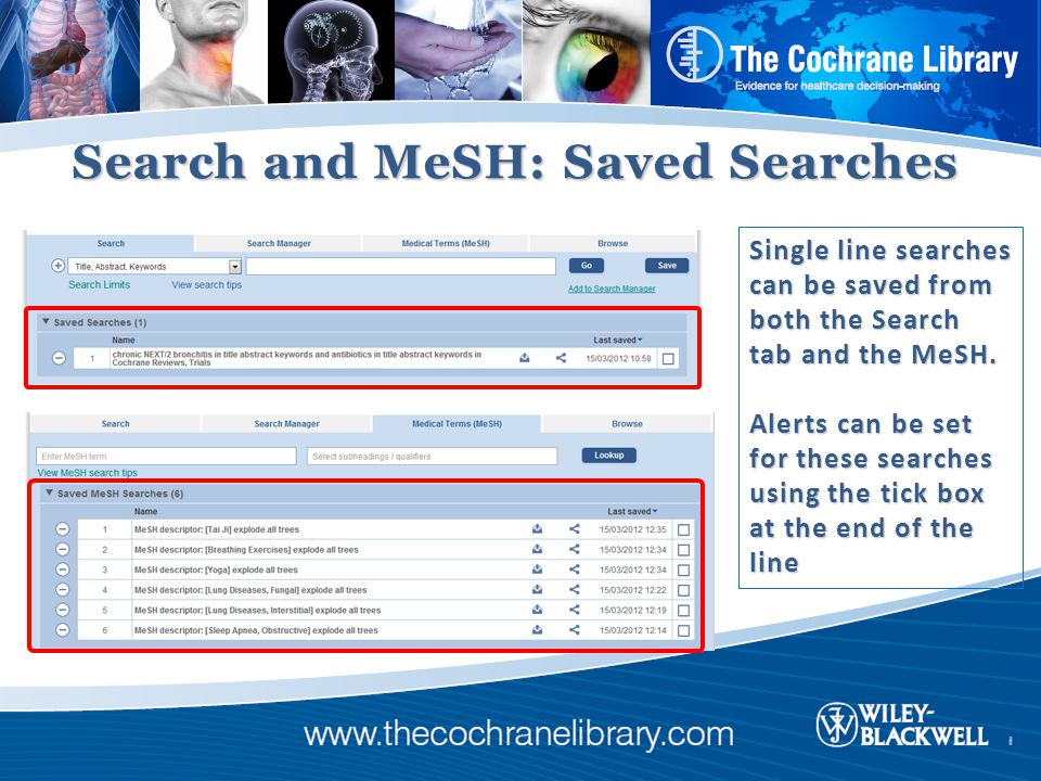 Search and MeSH: Saved Searches Single line searches can be saved from both the Search tab and the MeSH.