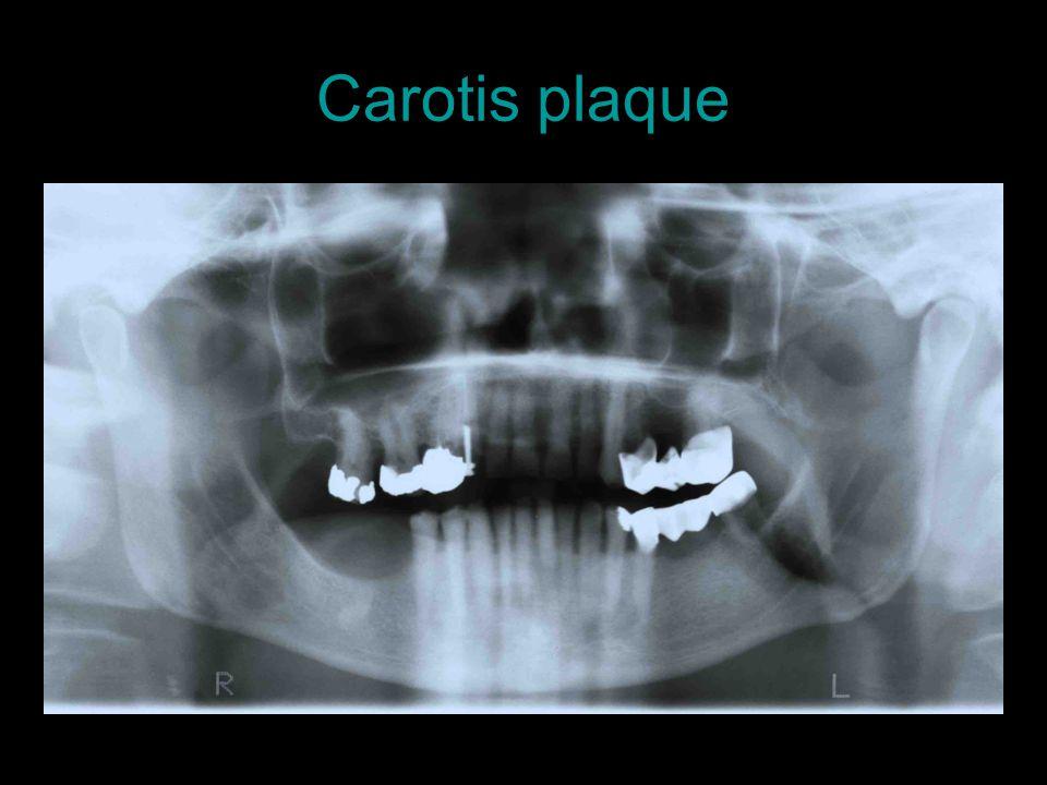 Carotis plaque