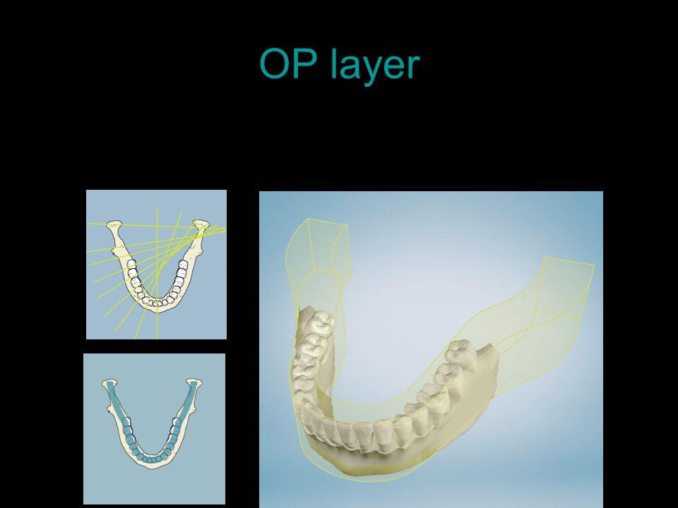 OP layer